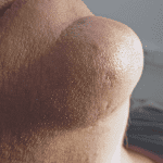 Laser Mole Removal - After