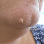Laser Mole Removal - Before