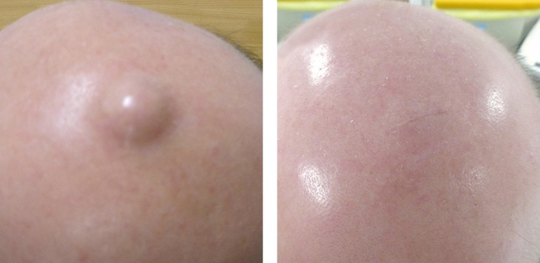 Cyst Removal Leeds