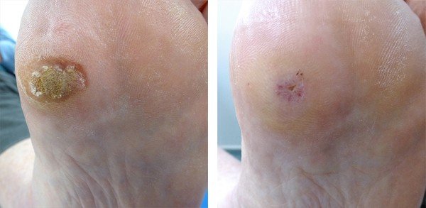 Plantar Wart Image Pictures Photos