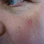Seborrhoeic Keratosis Removal - After
