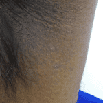 Skin Tag Removal - After