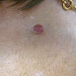 Skin Tag Removal - Before
