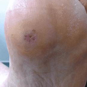 how to get rid of verruca on foot