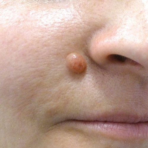 Removing Facial Mole 52