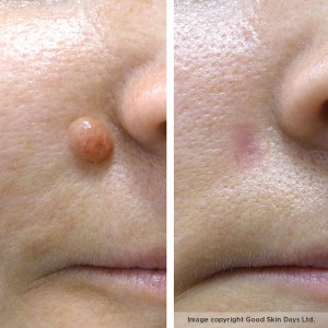 A dramatic mole removal before-and-after
