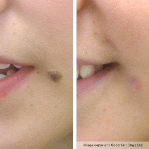 Patient EF's mole removal transformation
