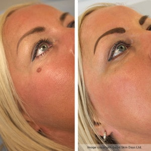 Laser mole removal can achieve fantastic results!