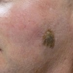 Seborrhoeic Keratosis Removal - Before