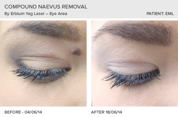 Mole Removal performed at the Skin Surgery Clinic, Leeds