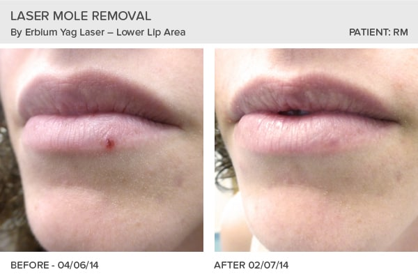 Mole Removal before and after photos from the Skin Surgery Clinic in Leeds