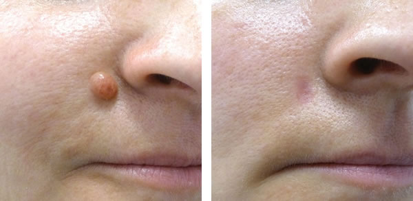 Cost of facial mole removal
