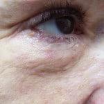 Fiona Marshall after Seborrhoeic Keratosis removal