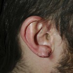 Stretched Earlobe Reconstruction - After
