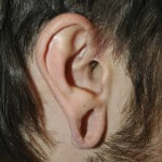 Stretched Earlobe Reconstruction - Before