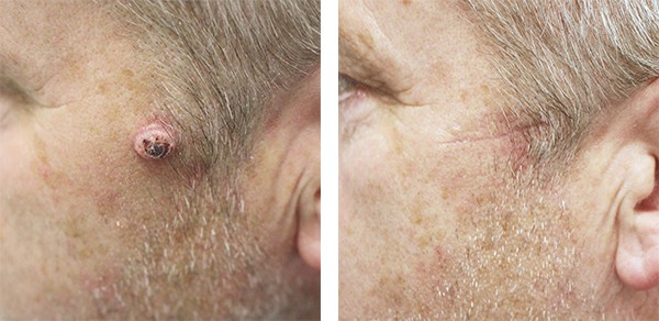 Skin Cancer Treatment Leeds