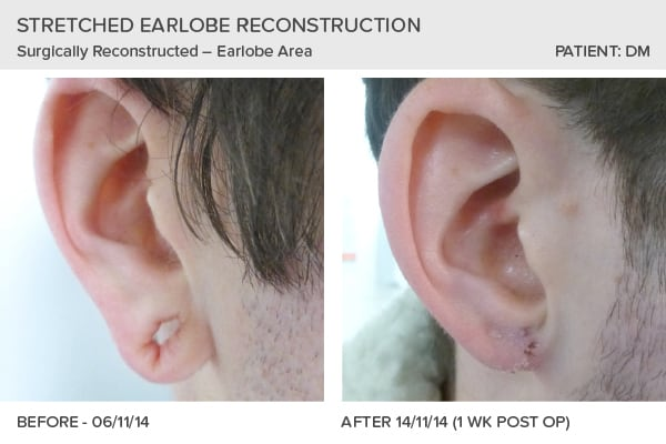 Stretched Earlobe Reconstruction Leeds