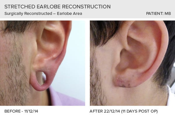 Earlobe Reconstruction December 2014
