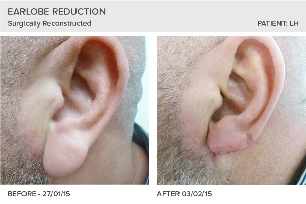 Earlobe Reduction and Reconstruction