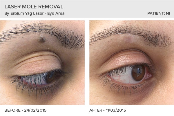 Laser Mole Removal in Leeds