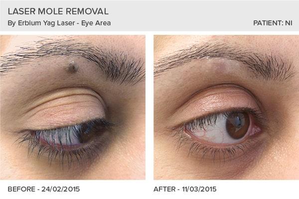 Mole Removal Testimonials Skin Surgery Clinic Leeds