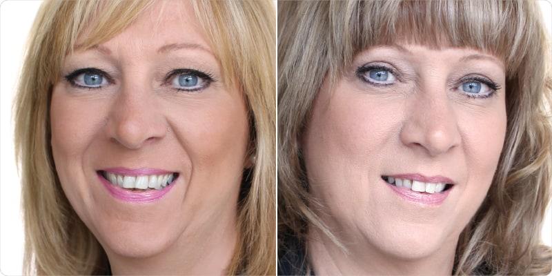 eyelid surgery upper blepharoplasty eyelid lift