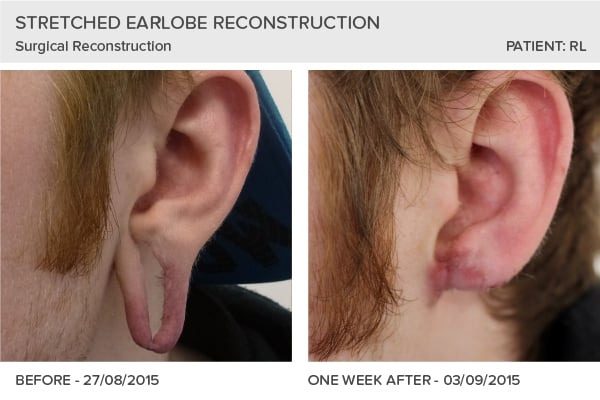 Earlobe Reconstruction Summer 2015 Leeds