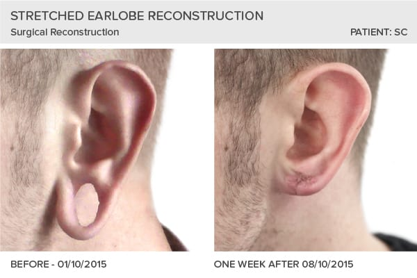 Major Stretched Earlobe Reconstruction