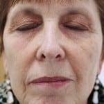 Maureen Kovacs after Seborrhoeic Keratosis removal