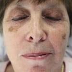 Maureen Kovacs before Seborrhoeic Keratosis removal