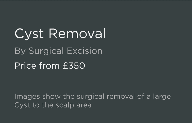 Cyst Removal Leeds and Harrogate - Introduction