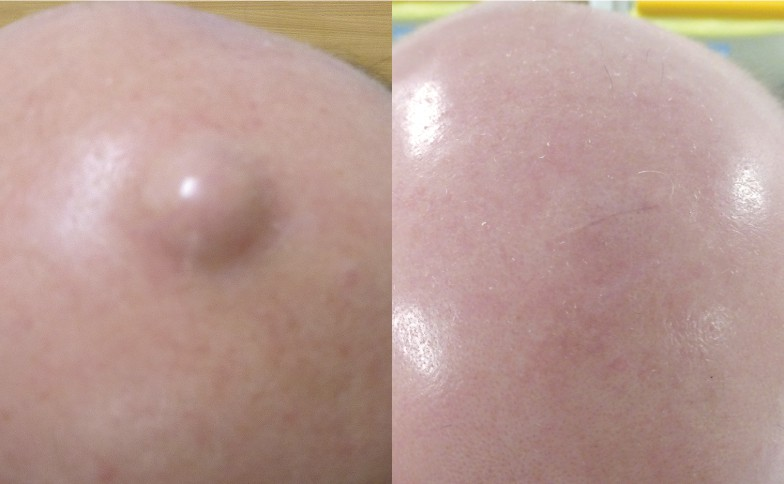 Cyst Removal Leeds and Harrogate - Before and After