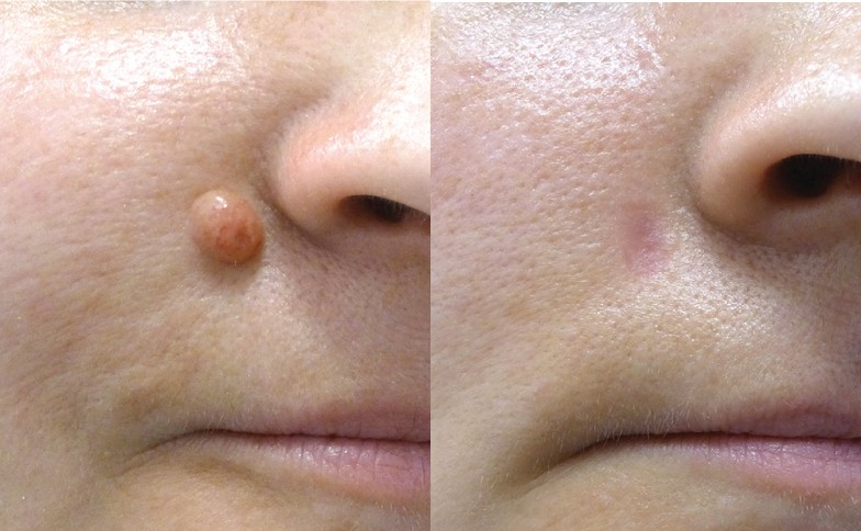 Mole Removal Leeds and Harrogate - Before and After