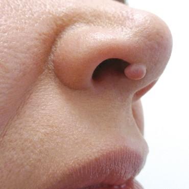 A non-suspicious benign mole