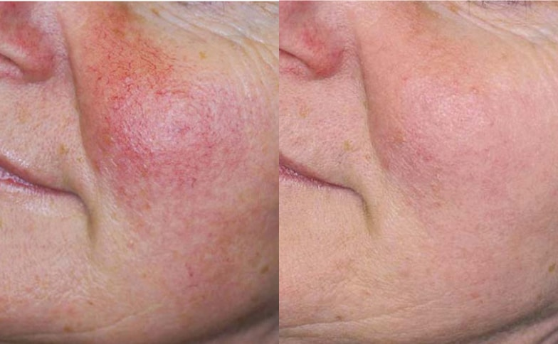 Private Dermatology Leeds and Bradford - Before and After