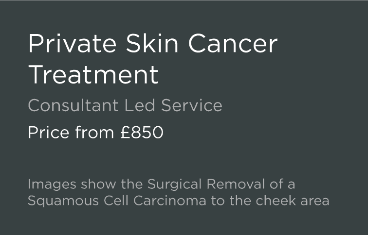 an introduction to the issue of skin cancer Jessica evert, md, edited by benjamin mcdonald, md list with boxes checked  skin cancer is very curable when it is found early while only your doctor can.