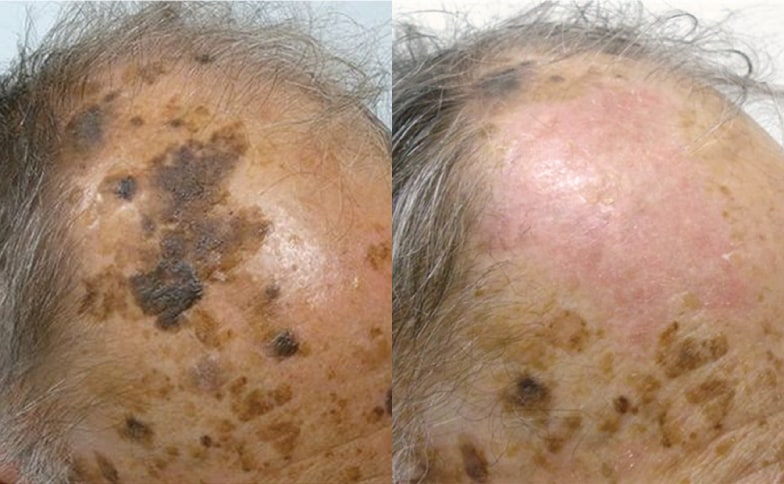Seborrhoeic Keratosis Removal Leeds and Harrogate - Before and After