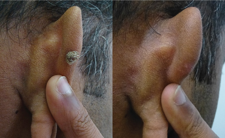 Skin Lesion Removal Leeds and Harrogate - Before and After
