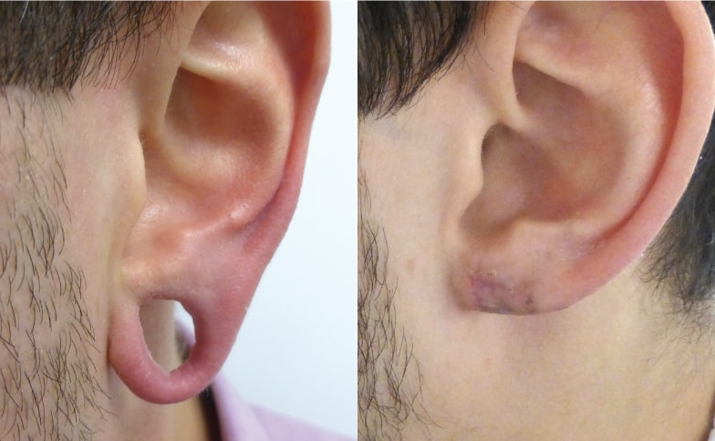 Stretched Earlobe Reconstruction Removal Leeds and Harrogate - Before and After