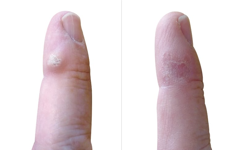 Wart Removal Leeds and Harrogate - Before and After