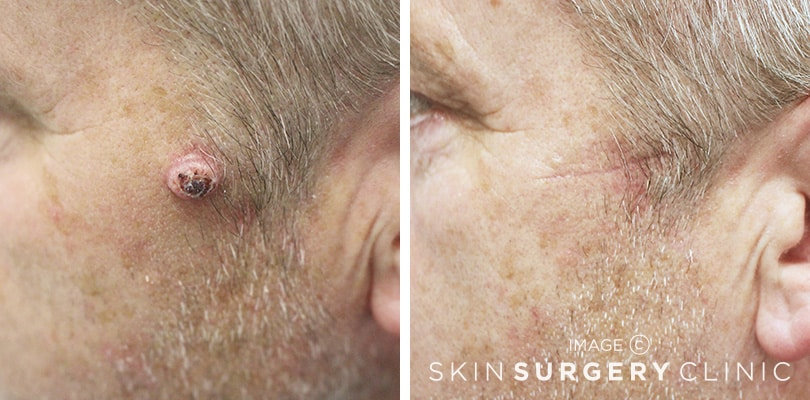 Private Skin Cancer Treatment Leeds and Harrogate - Before and After Photos
