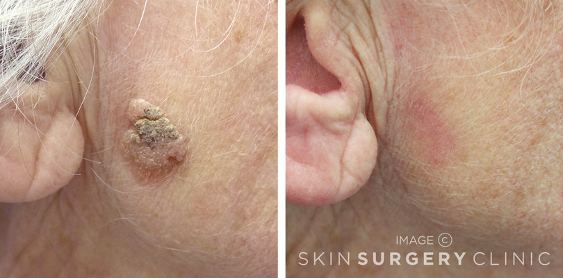 Seborrhoeic Keratosis Removal Leeds and Bradford - Before and After Photos