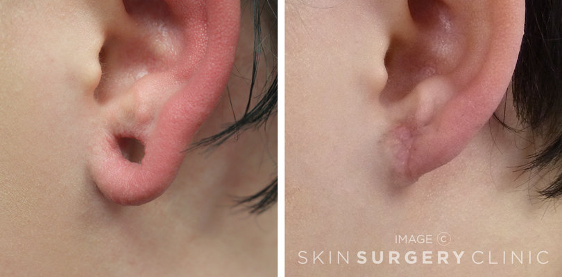 Stretched Earlobe Reconstruction Leeds and Harrogate - Before and After Photos