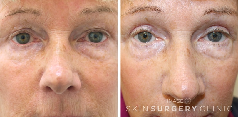 Upper Blepharoplasty Leeds before and after pictures