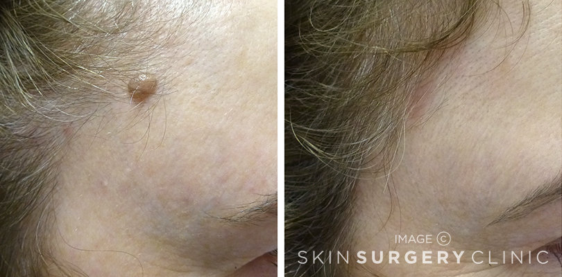 Laser Mole Removal in Leeds and Harrogate