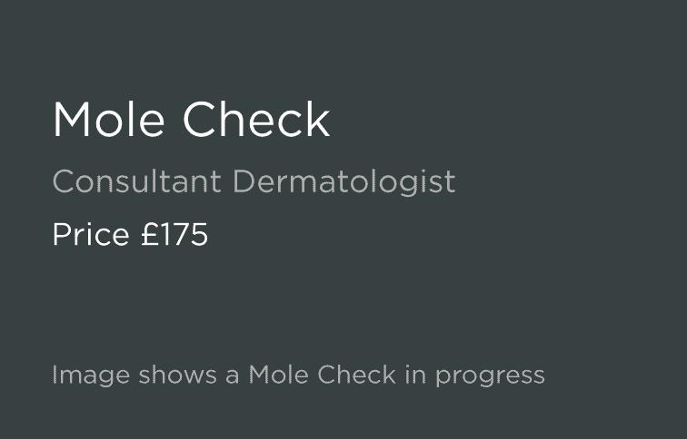 Mole Check Leeds and Harrogate - Introduction