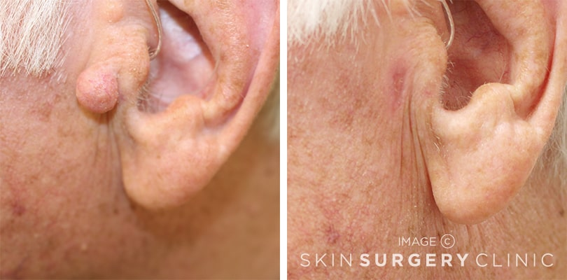Mole Removal Leeds and Harrogate - Before and After Photos
