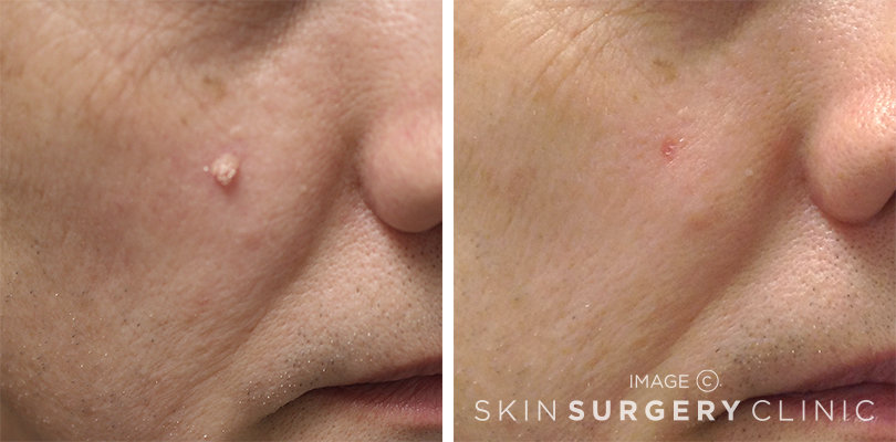 Skin Lesion Removal Leeds and Harrogate - Before and After Photos