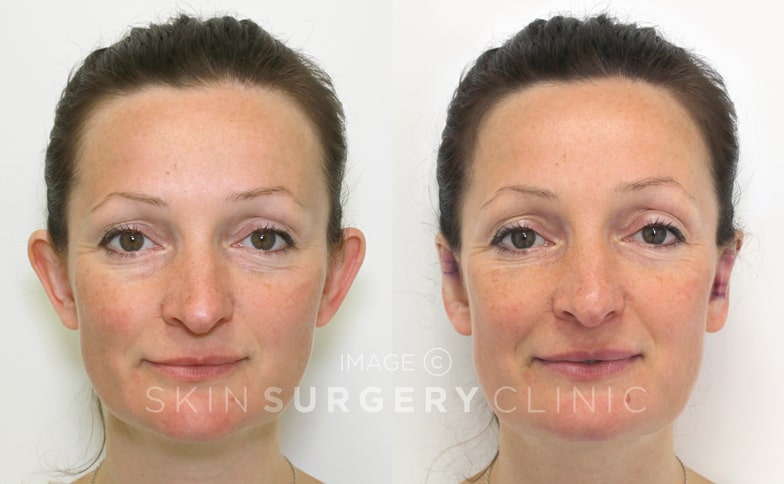 EarFold Prominent Ear Correction Leeds and Bradford - Before and After