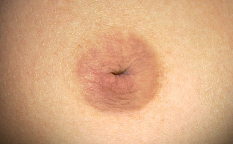 Inverted Nipple Surgery Leeds and Harrogate - Before and After